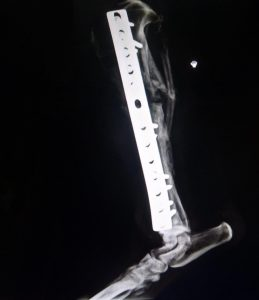 xray of leg with metal splint